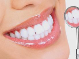 Cách làm trắng răng tại nhà trong 2 phút
