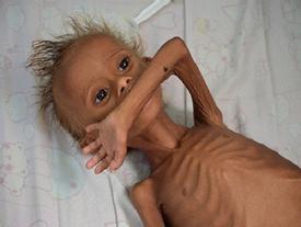 Cậu bé 'da bọc xương' thoi thóp chờ chết gây chấn động thế giới 1 năm trước giờ ra sao?