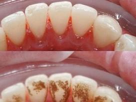 Cao răng dày đến mấy cũng tự bật ra từng mảng, hôi miệng cỡ nào cũng hết chỉ với 1.000 đồng