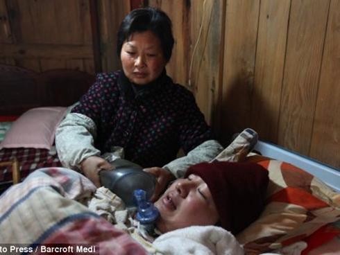 Bố mẹ ngày đêm bóp bóng thở suốt 5 năm trời giúp con duy trì sự sống, dừng lại 3 phút con sẽ chết