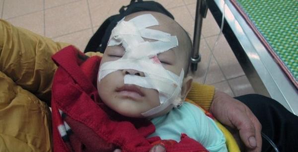 Cuộc sống mới của bé 6 tháng tuổi chết hụt dưới trận mưa dao điên cuồng của người chú rể-1