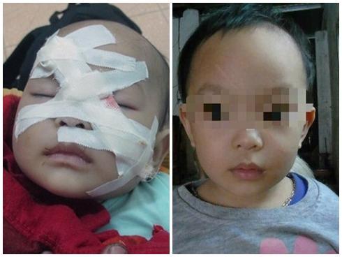 Cuộc sống mới của bé 6 tháng tuổi chết hụt dưới trận mưa dao điên cuồng của người chú rể