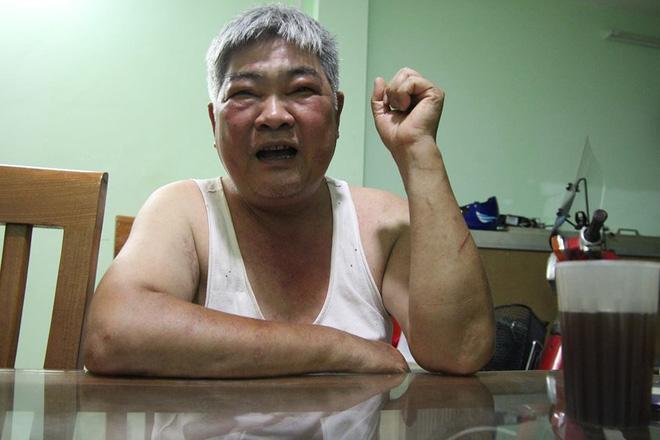 Hà Nội: Nỗi khổ cực của người cha hơn 1 tháng nay đi tìm con gái nghi bị thanh niên xấu ép bỏ đi-1