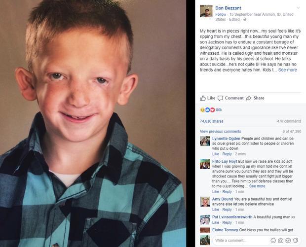 Con trai bị bắt nạt và gọi là đồ xấu xí ở trường, ông bố gửi tâm thư cảm động trên Facebook-2