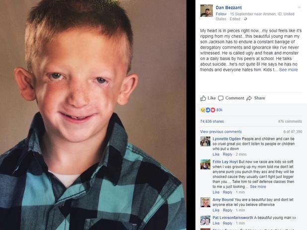 Con trai bị bắt nạt và gọi là 'đồ xấu xí' ở trường, ông bố gửi tâm thư cảm động trên Facebook