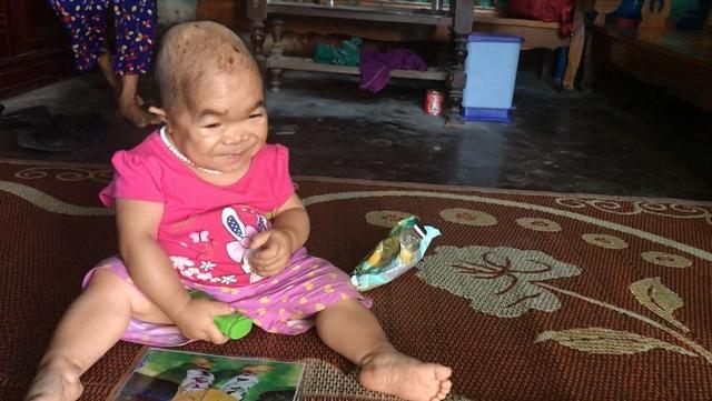 Kỳ lạ người phụ nữ 27 tuổi mang hình hài trẻ lên 2 ở Thái Nguyên-1