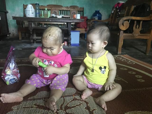 Kỳ lạ người phụ nữ 27 tuổi mang hình hài trẻ lên 2 ở Thái Nguyên-2