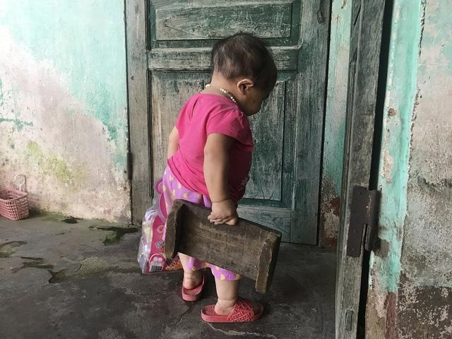 Kỳ lạ người phụ nữ 27 tuổi mang hình hài trẻ lên 2 ở Thái Nguyên-3