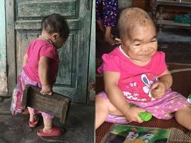 Kỳ lạ người phụ nữ 27 tuổi mang hình hài 'trẻ lên 2' ở Thái Nguyên