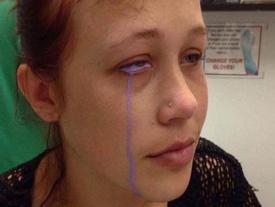 'Đú đởn' xăm nhãn cầu, cô gái trẻ khóc uất nghẹn vì biến chứng mù mắt