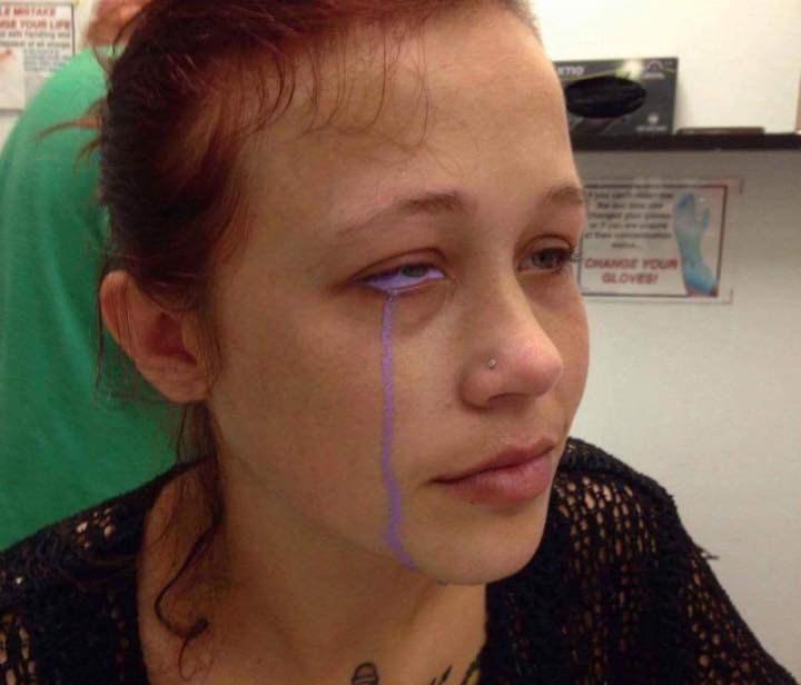 Đú đởn xăm nhãn cầu, cô gái trẻ khóc uất nghẹn vì biến chứng mù mắt-3