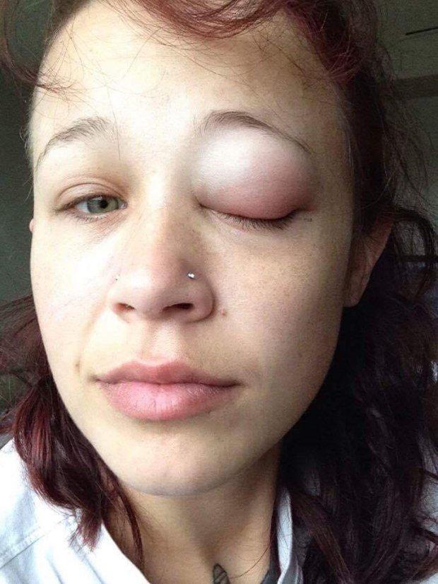 Đú đởn xăm nhãn cầu, cô gái trẻ khóc uất nghẹn vì biến chứng mù mắt-4