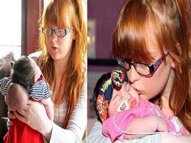 Khoảnh khắc bé gái có bộ não bên ngoài hộp sọ qua đời trong vòng tay mẹ khiến ai cũng nhói lòng