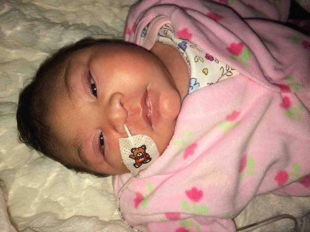 Khoảnh khắc bé gái có bộ não bên ngoài hộp sọ qua đời trong vòng tay mẹ khiến ai cũng nhói lòng-3