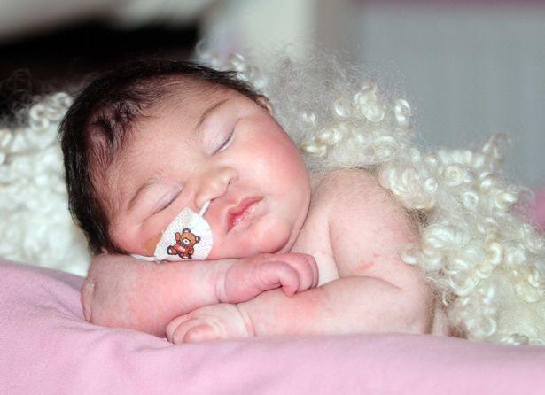 Khoảnh khắc bé gái có bộ não bên ngoài hộp sọ qua đời trong vòng tay mẹ khiến ai cũng nhói lòng-4