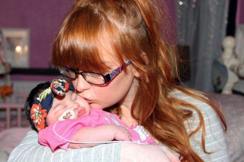 Khoảnh khắc bé gái có bộ não bên ngoài hộp sọ qua đời trong vòng tay mẹ khiến ai cũng nhói lòng-5