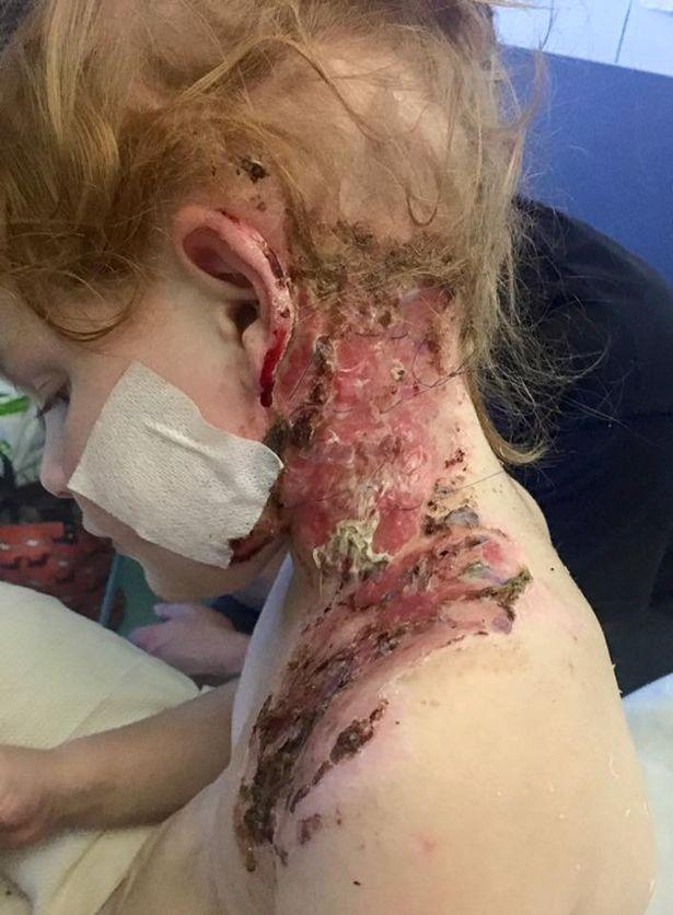 Kinh hoàng bé gái 4 tuổi bị bỏng nặng khi xem pháo hoa trong vườn nhà-2