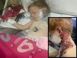 Kinh hoàng bé gái 4 tuổi bị bỏng nặng khi xem pháo hoa trong vườn nhà
