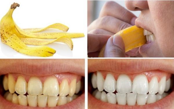 1001 cách làm trắng răng tự nhiên, rẻ tiền chẳng cần đi nha sĩ-5