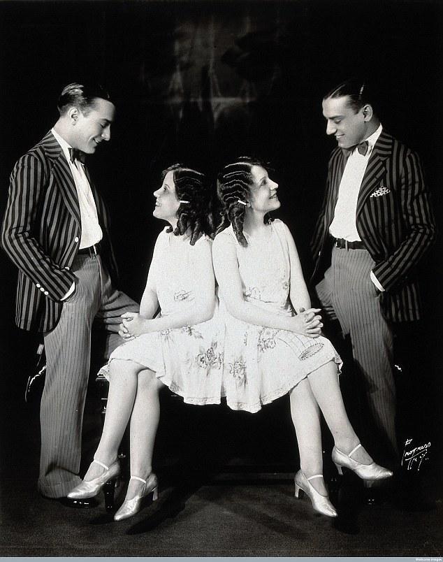 Cặp song sinh liền thân xinh đẹp nhất thế giới, kết hôn với hai ông chồng nhưng đến chết vẫn là trinh nữ-8
