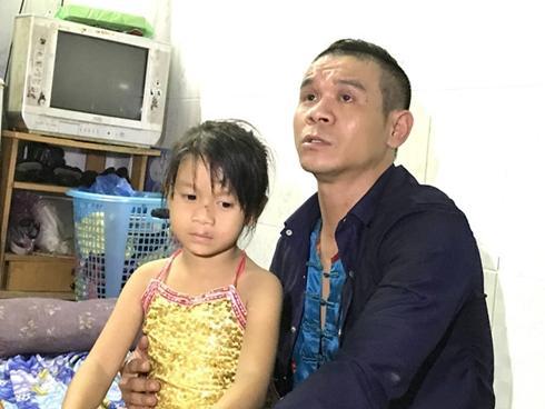 Nghệ sĩ xiếc Việt bao lần nuốt kiếm trào máu và 200 lần nhập viện