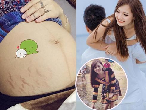 'Hot girl dân tộc' Thu Hương hạnh phúc dù không còn eo thon, da xuất hiện nhiều vết rạn nứt