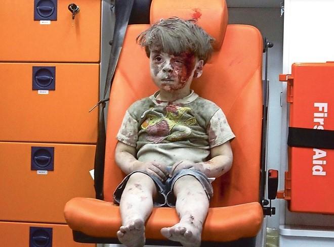 Xót xa hình ảnh bé trai da bọc xương nằm trên tay bác sĩ-5