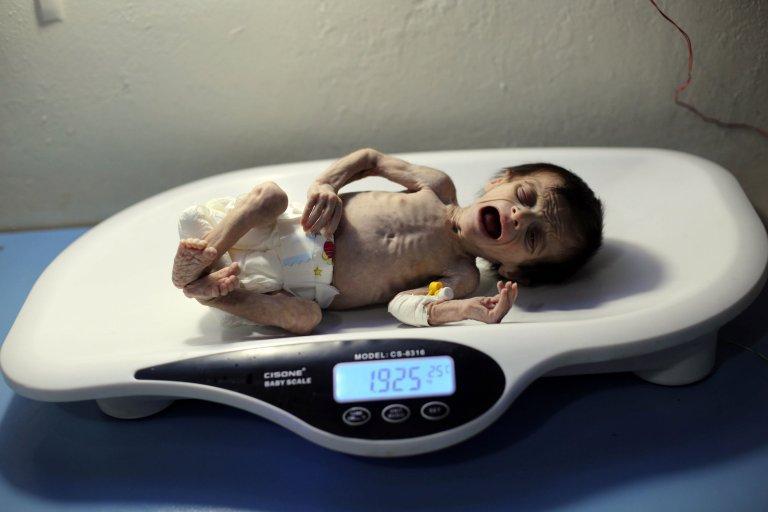 Chuyện đau lòng sau những bức hình em bé da bọc xương ám ảnh cả thế giới-1