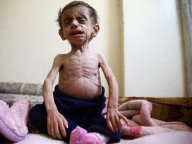 Chuyện đau lòng sau những bức hình em bé 'da bọc xương' ám ảnh cả thế giới