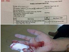Hà Nội: Nam thanh niên rách tay được bác sĩ chỉ định khâu... âm hộ tại phòng thủ thuật khoa sản