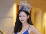 Hoa hậu Đại Dương 2017 chụp X-Quang tới 2 lần chứng minh không phẫu thuật thẩm mỹ