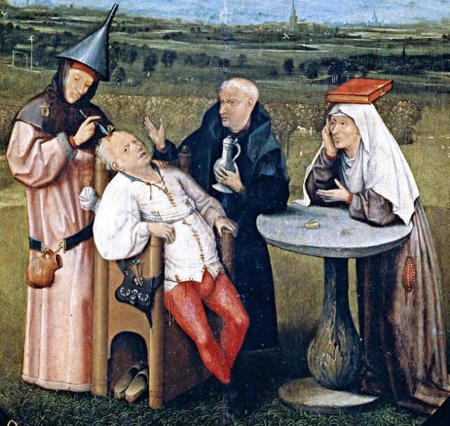 Những phương pháp chữa bệnh kỳ lạ trong lịch sử loài người-1