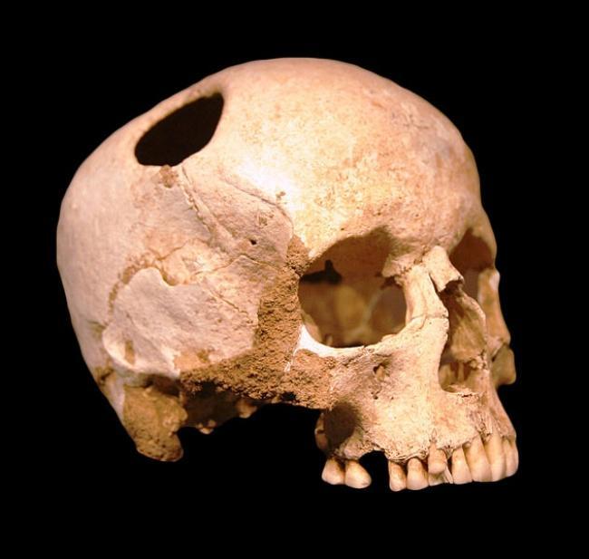 Những phương pháp chữa bệnh kỳ lạ trong lịch sử loài người-2
