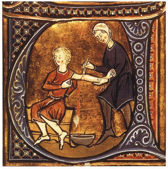 Những phương pháp chữa bệnh kỳ lạ trong lịch sử loài người-4