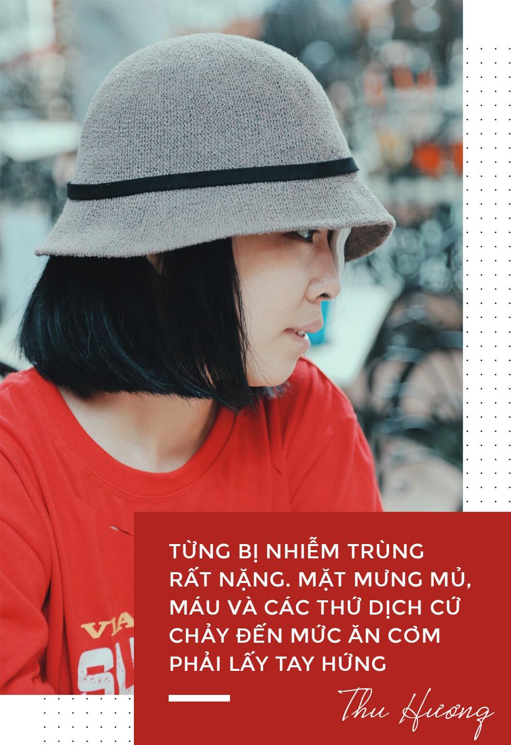 Nữ sinh bị tạt axit ở Sài Gòn: Tình yêu chợt đến khi đời tăm tối nhất!-3