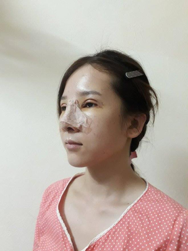 Bị người yêu bỏ, nhà tuyển dụng chê vì mắt lươn, cô gái xứ Nghệ lột xác ấn tượng-5
