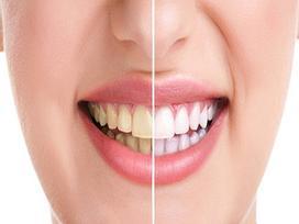 5 loại thực phẩm làm giảm độ trắng sáng của răng