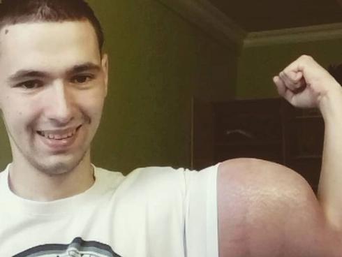 Chàng trai suýt mất mạng vì tiêm chất để tăng cơ bắp-1