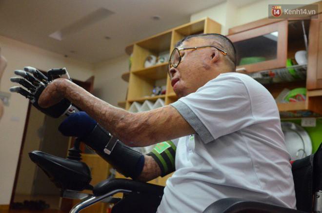 Chiến sĩ duy nhất sống sót sau vụ rơi trực thăng Hòa Lạc nghẹn ngào với đôi tay giả: Tôi vui sướng, hạnh phúc đến quên cả ăn uống-4