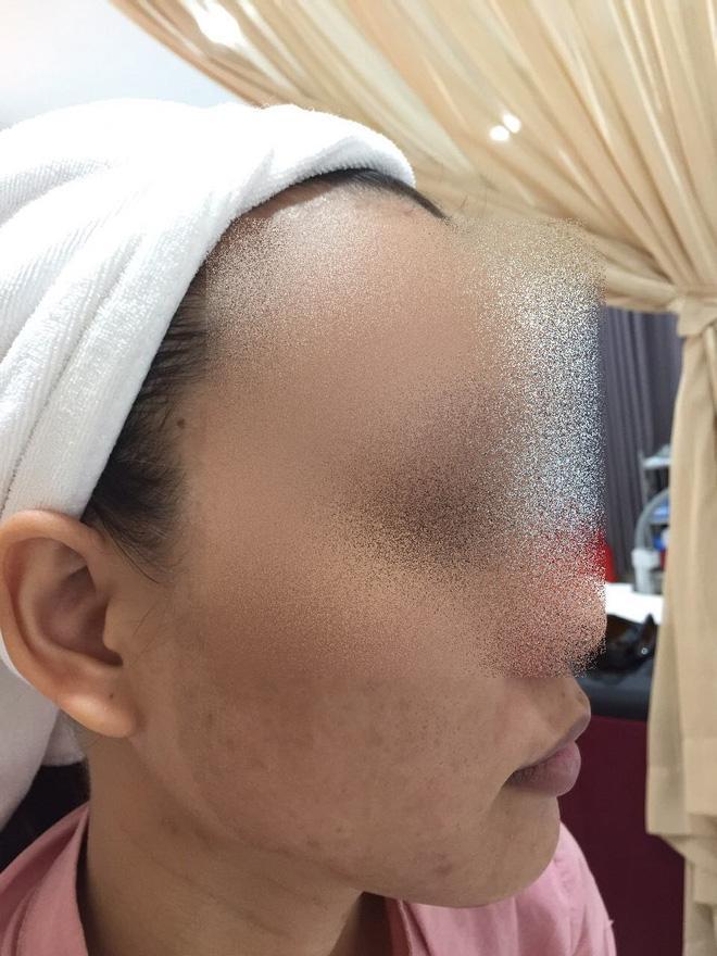 Cô gái lột da Đông y bị bỏng nặng và cuộc chiến giữa bác sĩ thẩm mỹ với kem trộn biến tướng-5