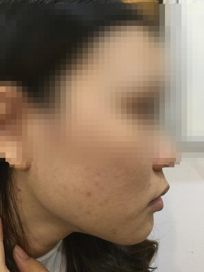 Cô gái lột da Đông y bị bỏng nặng và cuộc chiến giữa bác sĩ thẩm mỹ với kem trộn biến tướng-6