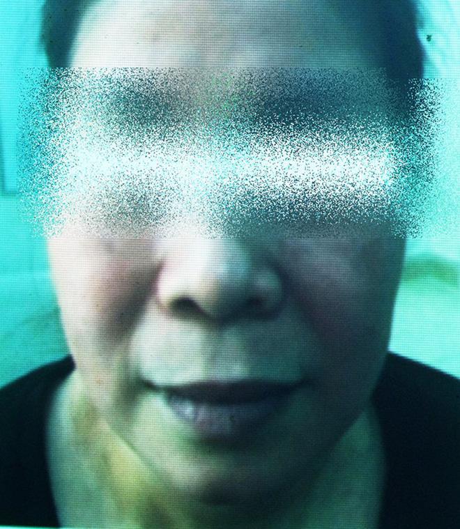 Cô gái lột da Đông y bị bỏng nặng và cuộc chiến giữa bác sĩ thẩm mỹ với kem trộn biến tướng-8