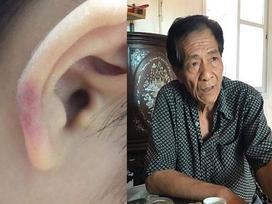 Hà Nội: Người thân kể lại sự việc mẹ kế là giáo viên mầm non đánh con chồng dã man