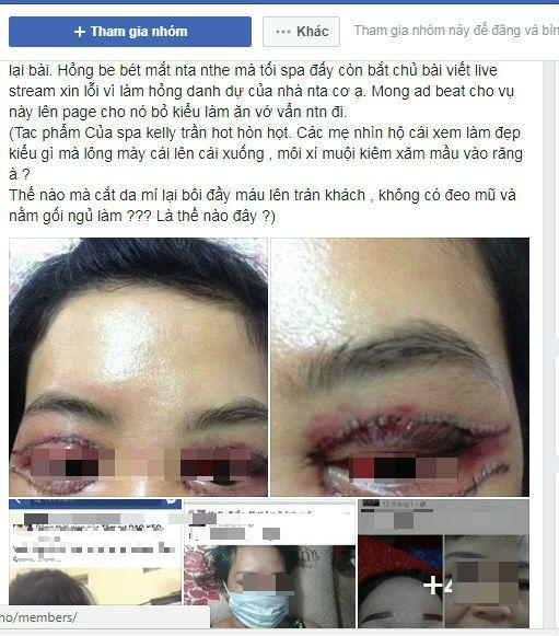 Hà Nội: Cô gái trẻ mắt thâm đen, mặt biến dạng sau khi đi làm mí ở spa-1