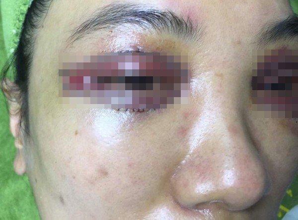 Hà Nội: Cô gái trẻ mắt thâm đen, mặt biến dạng sau khi đi làm mí ở spa-2