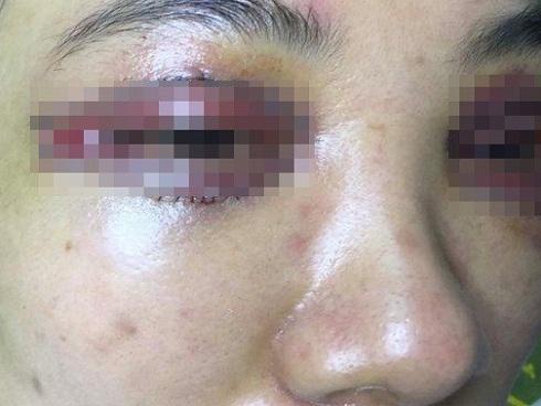 Hà Nội: Cô gái trẻ mắt thâm đen, mặt biến dạng sau khi đi làm mí ở spa