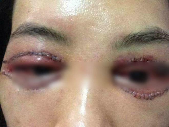Bác sĩ thẩm mỹ nói về vụ 'cắt mí gây bão': có thể sưng nề và đỏ sau thủ thuật, nhưng về mỹ quan thì ca này hỏng