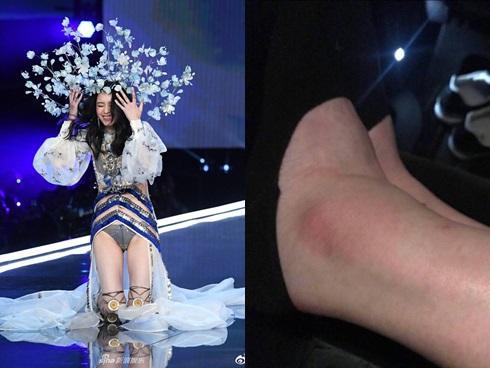 Lộ ảnh cổ chân sưng to, tấy đỏ của Ming Xi sau cú ngã 'trời giáng' tại Victoria's Secret Fashion Show