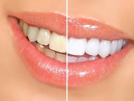 Cách tẩy trắng răng tại nhà hiệu quả