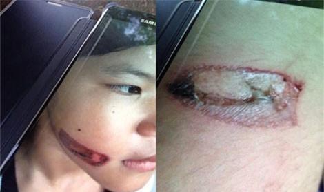 Bé gái bị bạo hành bằng sắt nung đỏ dí vào hai cánh tay-1